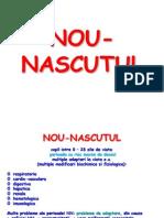 NOU-NASCUTUL