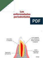 Periodontitis pacientes
