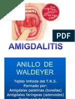 amigdalitis orl