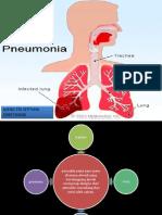 Tinjauan Pustaka Pneumonia