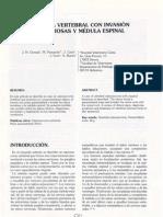 osteosarcoma 2