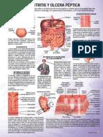 Gastritis y Ulcera Peptica