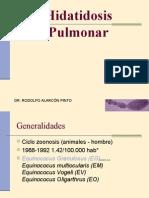 11._hidatidosis_pulmonar
