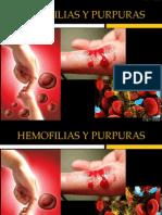 Hemofilia y PTI