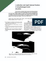 Green Et Al - Acute ORIF of PIP Fracture Dislocation_JHS 1992