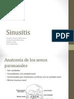 4a Otorrinolaringologia - Sinusitis