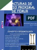 FRACTURAS DE TERCIO PROXIMAL DE FÉMUR 2