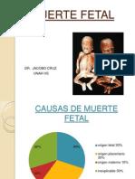 MUERTE_FETAL_DR._CRUZ