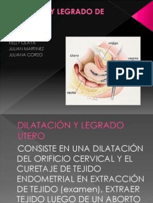 aborto dilatacion y raspado