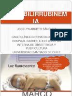 HIPERBILIRRUBINEMIA (1)