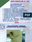 Tubo de Torax Aguilar1