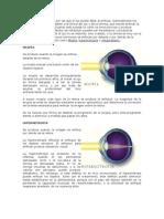 miopia, hipermetropia, astigmatismo