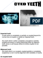 Impacted Teeth Part A