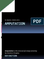 Amputation