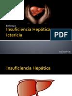 Semiología - Insuficiencia Hepatica e Ictericia