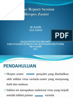 CRS Herpes Zoster