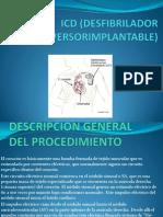 ICD (DESFIBRILADOR CARDIOVERSORIMPLANTABLE)