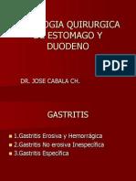 3. PATOLOGIA QUIRURGICA GASTRODUODENAL