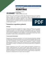 Drenaje Pleural PUC