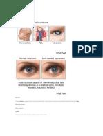 Congenital Cataract