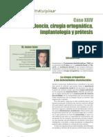 Ortodoncia-Multidisciplinar-24_1-10_Caso-N%C2%BA-43