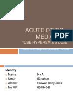 Acute Otitis Media Ppt