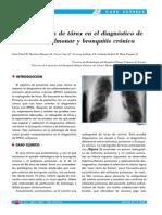 enficema pulmonar