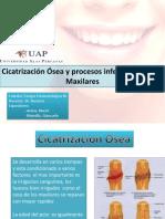 inf maxilares