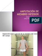 Amputación de miembro inferior