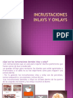 Incrustaciones Inlays y Onlays