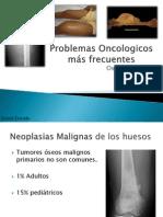 Osteosarcoma y Sarcoma Ewing