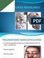 FRACTURAS MAXILARES