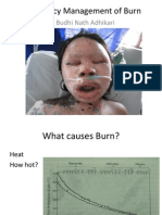 Emergency Management of Burn
