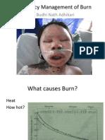 Emergency Management of Burn