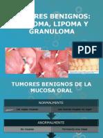 lipoma, granuloma, fibroma