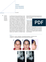 Ortodoncia sistema damon (1)