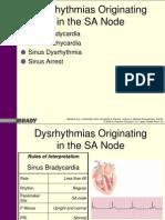Ch02a Sinus Dysrythmias