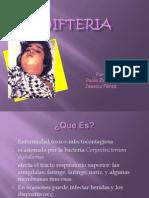 Difteria diapositiva