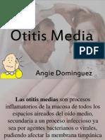 6.Otitis Media AngieDominguezCampo