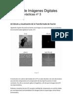 Comparativa de Filtros Para Imagenes en Matlab