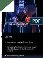 Artrosis de Cadera - Copia
