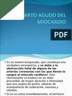 Infarto Agudo Del Miocardio 2