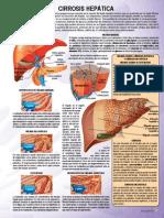 cirrosis_hepatica