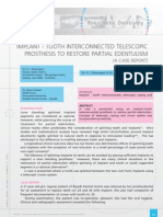 Implant - Tooth Interconnected Telescopic