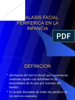Paralasis Facial