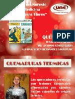 QUEMADURAS Belen