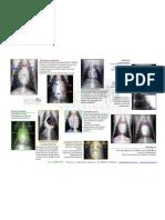 Radiografia_toracica_VD_y__DV (1)