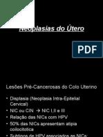 NEOPLASIA DE ÚTERO.ppt
