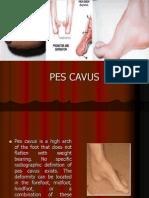 PES CAVUS ....