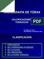 RADIOGRAFÍA DE TÓRAX. CALCIFICACIONES TORÁCICAS